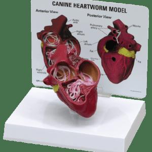Anatomic Models, Dental, Pathology, Heart Model