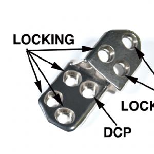 2.7 TPO/DPO Locking Plate, 30 Right