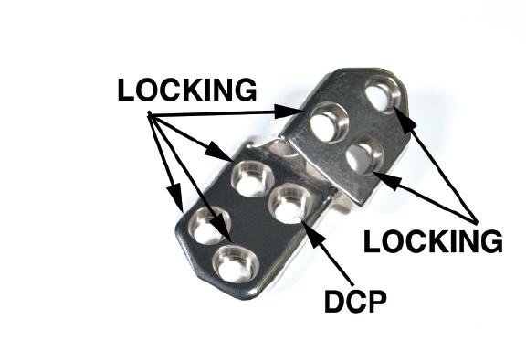 2.7 TPO/DPO Locking Plate, 25 Right