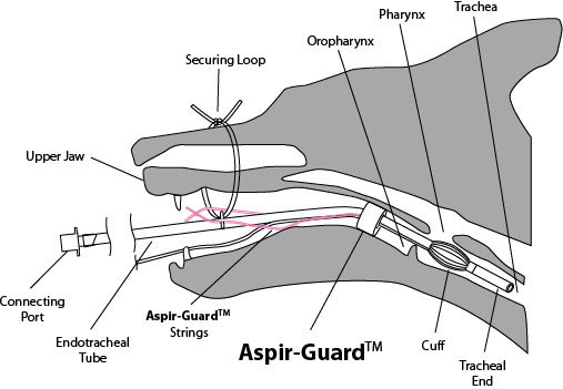 aspir-guard  set of all 3