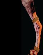 Marq-Easy Thermoplastic Splint Sheets, Thick, Medium