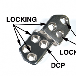 2.7 TPO/DPO Locking Plate, 30 Right