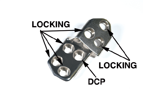 2.7 TPO/DPO Locking Plate, 25 Right